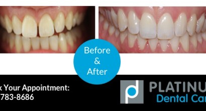 Invisalign 2, Before & After