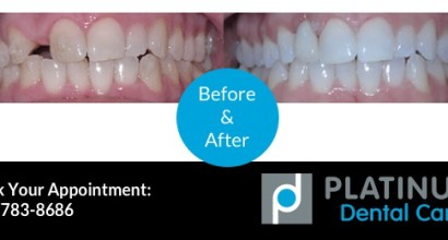 Tooth Replacement, Before & After