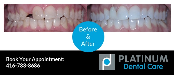 tooth replacement, before and after photo