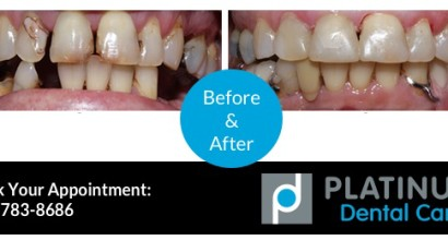 Tooth Replacement – Before & After