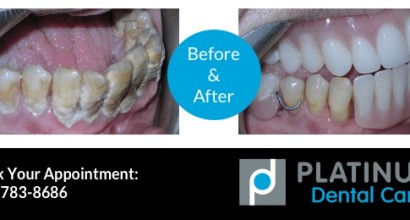 Gum Disease Treatment, Before & After