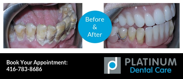 gum disease treatment before and after photo