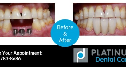 Dental Implants, Lower, Before & After