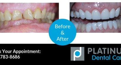 Invisalign, Before & After