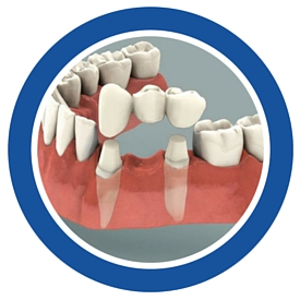 replace missing teeth with a dental bridge