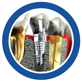 tooth replacement by dental implant