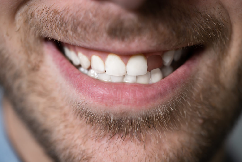 Saving Your Smile: What to Do About Missing Teeth - Platinum Dental Care